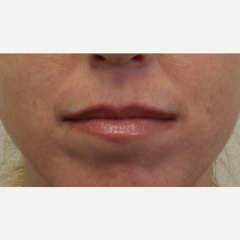 25-34 year old woman treated with Lip Augmentation before 3425093