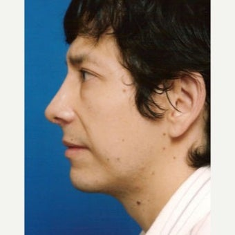 35-44 year old man treated with Chin Implant after 1637248