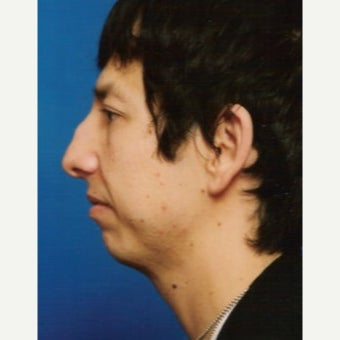35-44 year old man treated with Chin Implant before 1637248