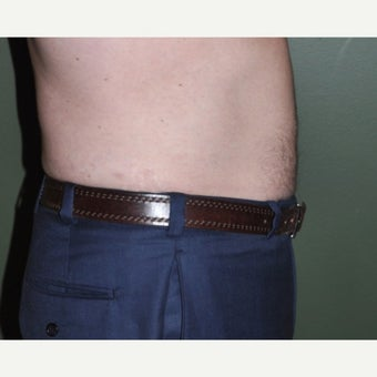 45-54 year old man treated with Liposuction 1848022