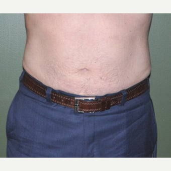 45-54 year old man treated with Liposuction after 1848022