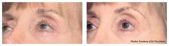 Laser skin resurfacing around the eyes