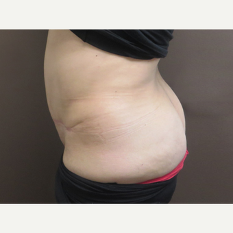 35-44 year old woman treated with Tummy Tuck after 3226467