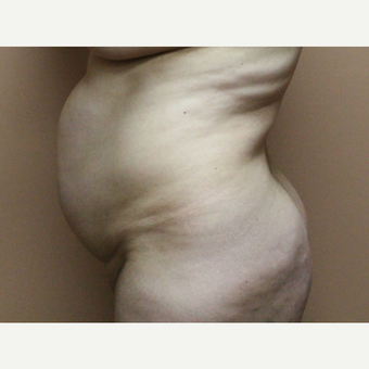 35-44 year old woman treated with Tummy Tuck before 3226467