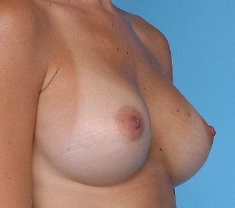 Breast augmentation with Silicone breast implants after 67280