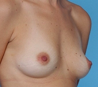 Breast augmentation with Silicone breast implants before 67280