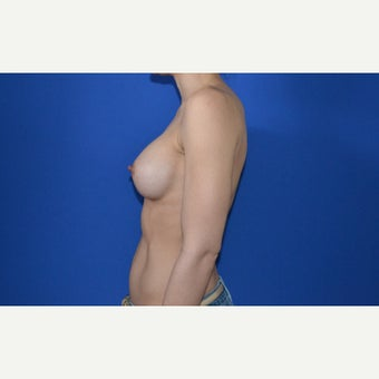 25-34 year old woman treated with Breast Augmentation after 2550787