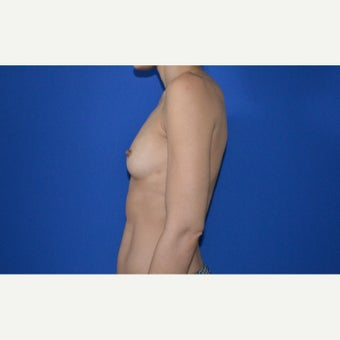 25-34 year old woman treated with Breast Augmentation before 2550787