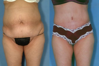 Tummy Tuck after 251551