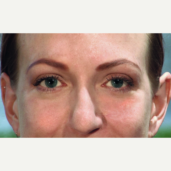 25-34 year old woman treated with Ptosis and Blepharoplasty Surgery after 3456315