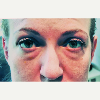 25-34 year old woman treated with Ptosis and Blepharoplasty Surgery before 3456315