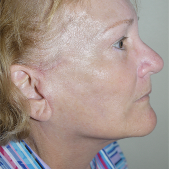 67 year old woman treated with Neck Lift after 3408452