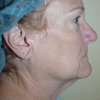 67 year old woman treated with Neck Lift before 3408452