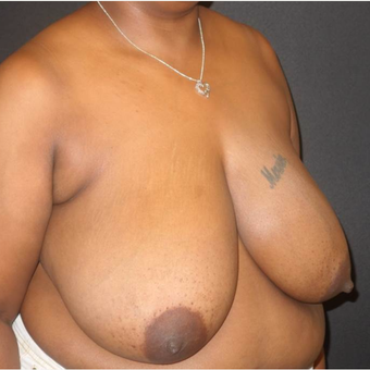 35-44 year old woman treated with Breast Reduction before 3446977