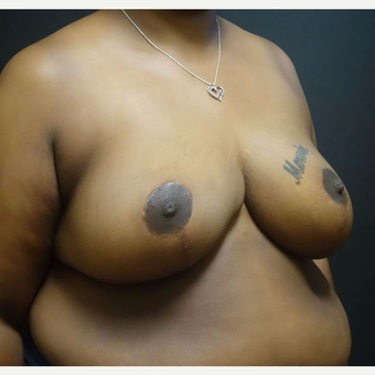 35-44 year old woman treated with Breast Reduction after 3446977