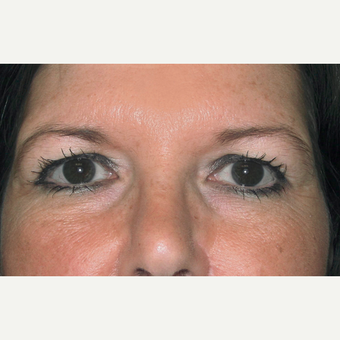 Eyelid Surgery (Blepharoplasty) before 3831656