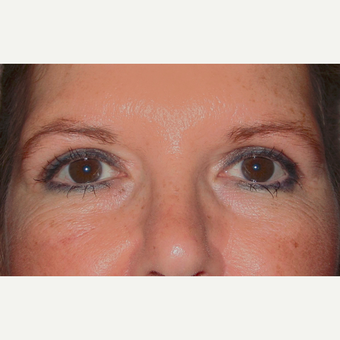 Eyelid Surgery (Blepharoplasty) after 3831656