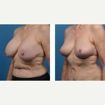 65 year old woman treated with Breast Implant Removal after 2524200