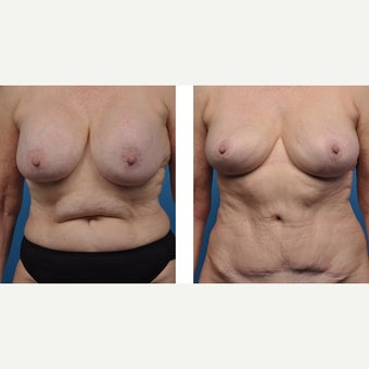 65 year old woman treated with Breast Implant Removal before 2524200