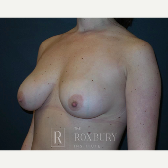 25-34 year old woman treated with Breast Lift before 3844319