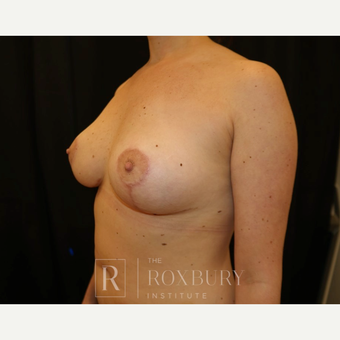 25-34 year old woman treated with Breast Lift after 3844319