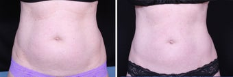 CoolSculpting Front View before 1135154