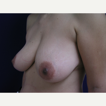 45-54 year old woman treated with Breast Lift with Implants before 3253872