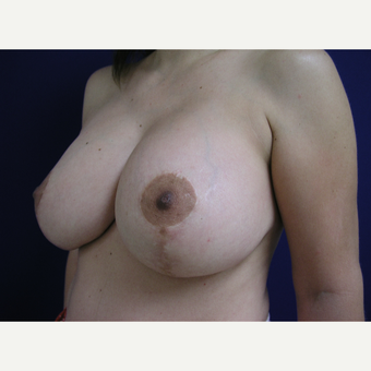 45-54 year old woman treated with Breast Lift with Implants after 3253872