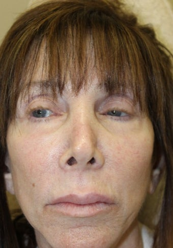 55-64 year old woman treated with Lip Lift before 1746573