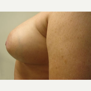 45-54 year old woman treated with Breast Augmentation after 3168225