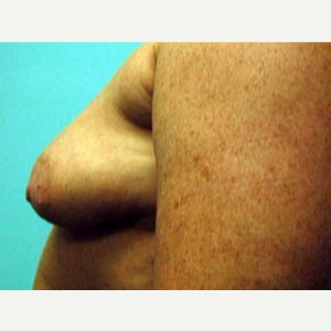 45-54 year old woman treated with Breast Augmentation before 3168225
