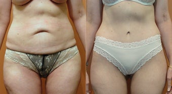 Tummy Tuck before 974182