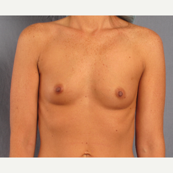 25-34 year old woman treated with Breast Augmentation before 3537399