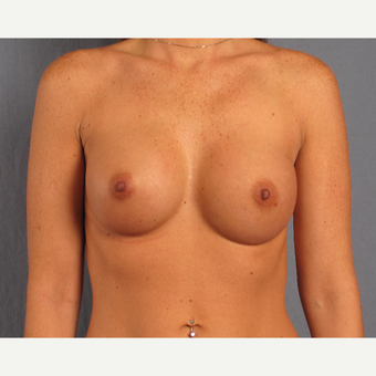 25-34 year old woman treated with Breast Augmentation after 3537399