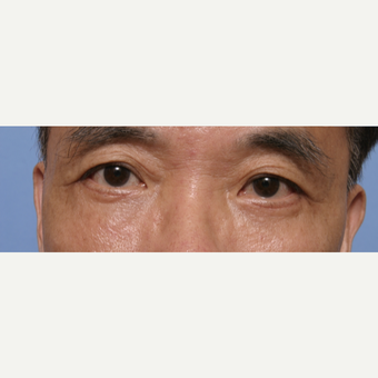 55-64 year old man treated with Eye Bags Treatment after 3135591