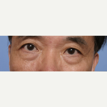 55-64 year old man treated with Eye Bags Treatment before 3135591