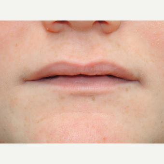 18-24 year old woman treated with Lip Augmentation before 3169854