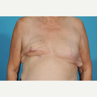 59 year old woman treated with Breast Reconstruction before 3097717