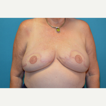 59 year old woman treated with Breast Reconstruction after 3097717