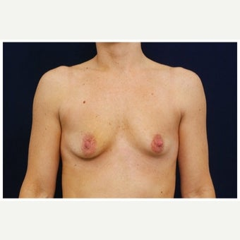 35-44 year old woman treated with Breast Lift with Implants before 1643451