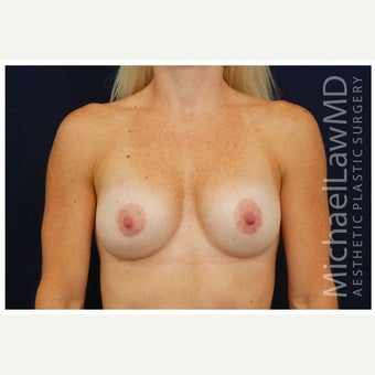 35-44 year old woman treated with Breast Lift with Implants after 1643451