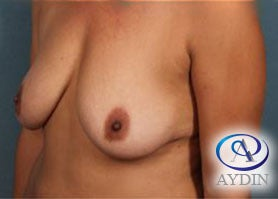 45-54 year old woman treated with breast lift before 3325863