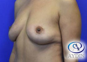 45-54 year old woman treated with breast lift after 3325863