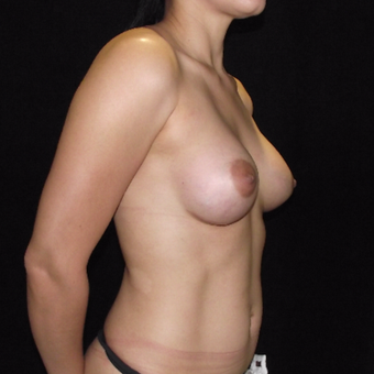 25-34 year old woman treated with Breast Implants after 3647141
