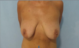 Mastopexy with vertical scar and teardrop implants before 3053593