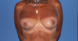 Mastopexy with vertical scar and teardrop implants after 3053593
