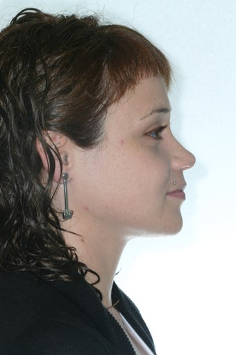 Bimax Orthognathic Surgery and simultaneous Rhinoplasty 1324653
