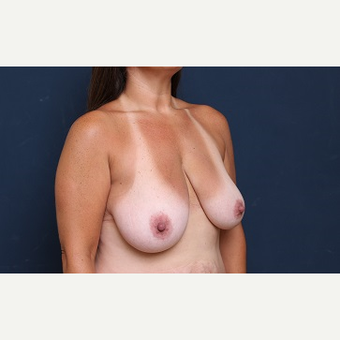 35-44 year old woman treated with Breast Reduction before 3344922