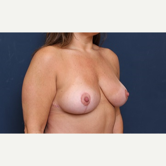 35-44 year old woman treated with Breast Reduction after 3344922