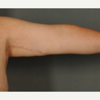 45-54 year old man treated with Arm Lift after 2975577